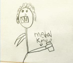 metalkneejpg